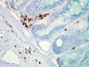 smc-100_hsp70_antibody_c92_ihc_mouse_colon-carcinoma_40x_1